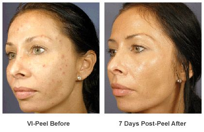 MED  COSMETIC PEELS  UR LOCATION LICENSED AND CERTIFIED $150 - $300 (mobile to you 562-433-8852)