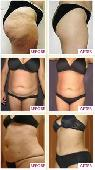 Lose inches with liposonix- safe  fast  and pain free   Santa Barbara
